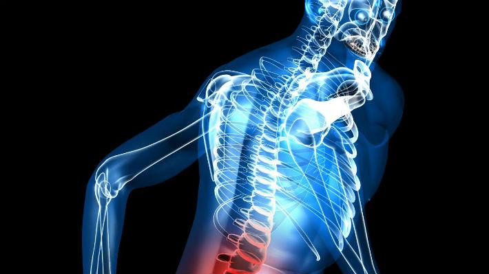 Un paciente parapléjico puede volver a caminar gracias a un electrodo implantado en su columna vertebral